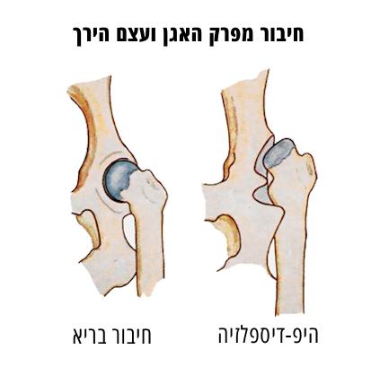 מפרק היפדיספזיה בהשוואה למפרק תקין